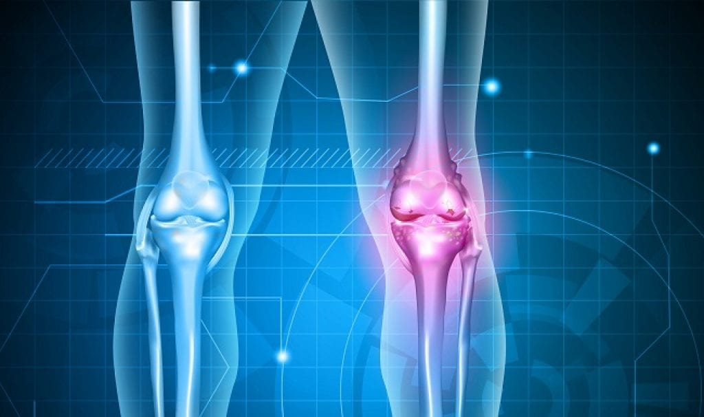 Osteoarthritis Stem Cell Therapy